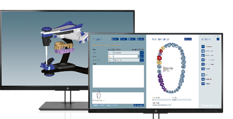 [Translate to 中文:] Two screens showing the dental CAD software Ceramill Mind